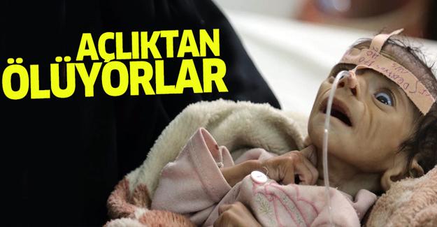 Yemen'de açlıktan ölüyorlar