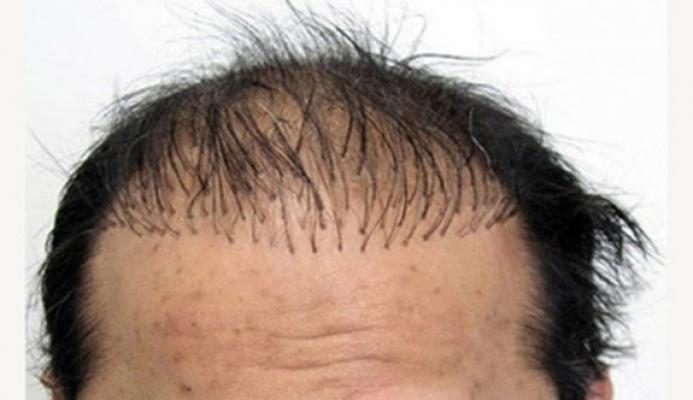 Saç Ekimi Teknikleri Yenilendi