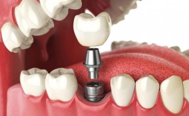 Implant ile Gülüşünüzü Yeniden Kazanın