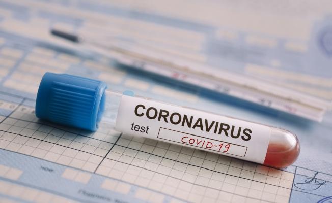 Korona Virüs Testi