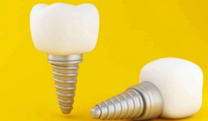 Diş Kaplama Tedavisi